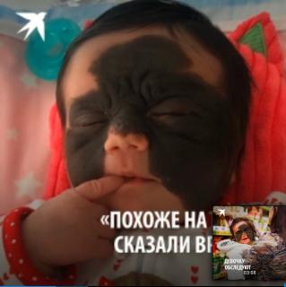 Уникальные лазерные методики лечения в России. Девочка